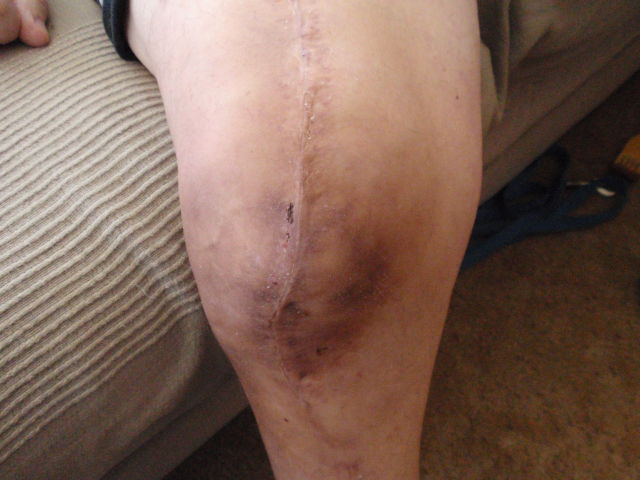 it's healing nicely!  We got back in 2 weeks to make sure the infection is gone - he can't wait to get his knee replaced!